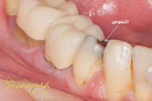 مشاكل الاسنان