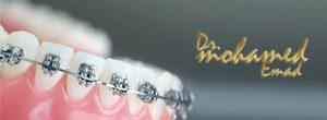 تقويم الاسنان