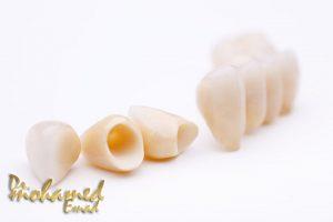 انواع تركيبات الاسنان